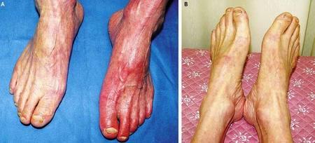 peripheral-arterial-disease-circulation-specialist