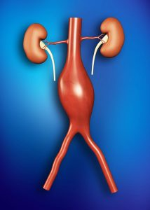 aneurysm-circulation-specialist