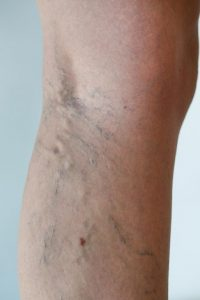 varicose-veins-circulation-specialist